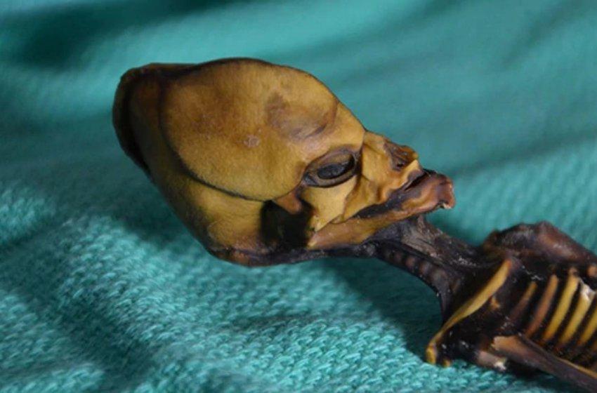 El esqueleto de Atacama era una niña con una enfermedad ósea