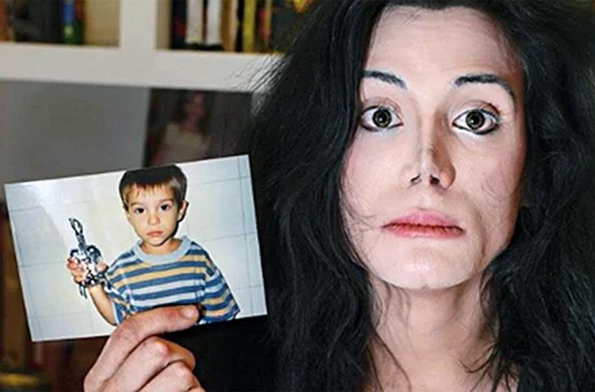 Felipe Pettinato internado de urgencia, la impactacte foto de su nariz